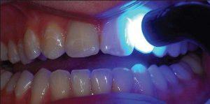 نحوهی ترمیم دندان با استفاده از لایت کیور